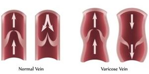 Varicose veins are veins that have stretched causing the valves not to work properly